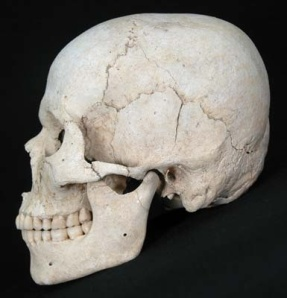 Signs of cranial deformation in the skulls of Hirota site, Tanegashima Island